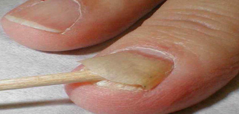 Что делать в случае отслоения ногтей?